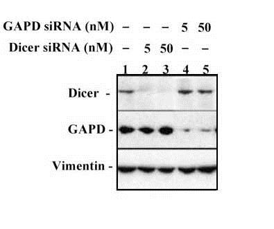 Western blot - Anti-Dicer antibody [4A6] (ab82539)