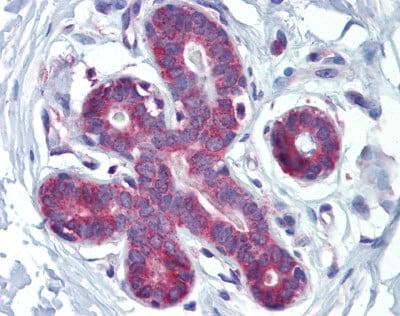 Immunohistochemistry (Formalin/PFA-fixed paraffin-embedded sections) - Anti-HOXA5 antibody (ab82645)