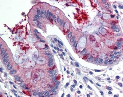 Immunohistochemistry (Formalin/PFA-fixed paraffin-embedded sections) - Anti-LIN7C antibody (ab82646)
