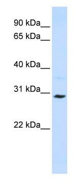 Western blot - Anti-SLC25A20 antibody (ab82678)