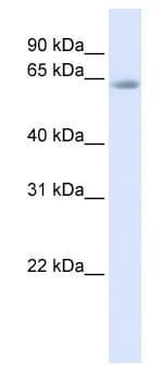 Western blot - Anti-TCF-4/TCF7L2 antibody (ab82768)