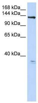 Western blot - Anti-Anoctamin 3 antibody (ab82781)