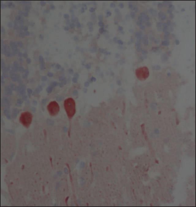 Immunohistochemistry (Formalin/PFA-fixed paraffin-embedded sections) - Anti-Calbindin antibody [CB-955] (ab82812)