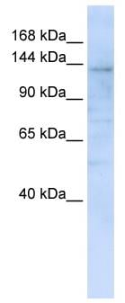 Western blot - Anti-IMPG2 antibody (ab82813)