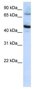 Western blot - Anti-CYP46 antibody (ab82814)