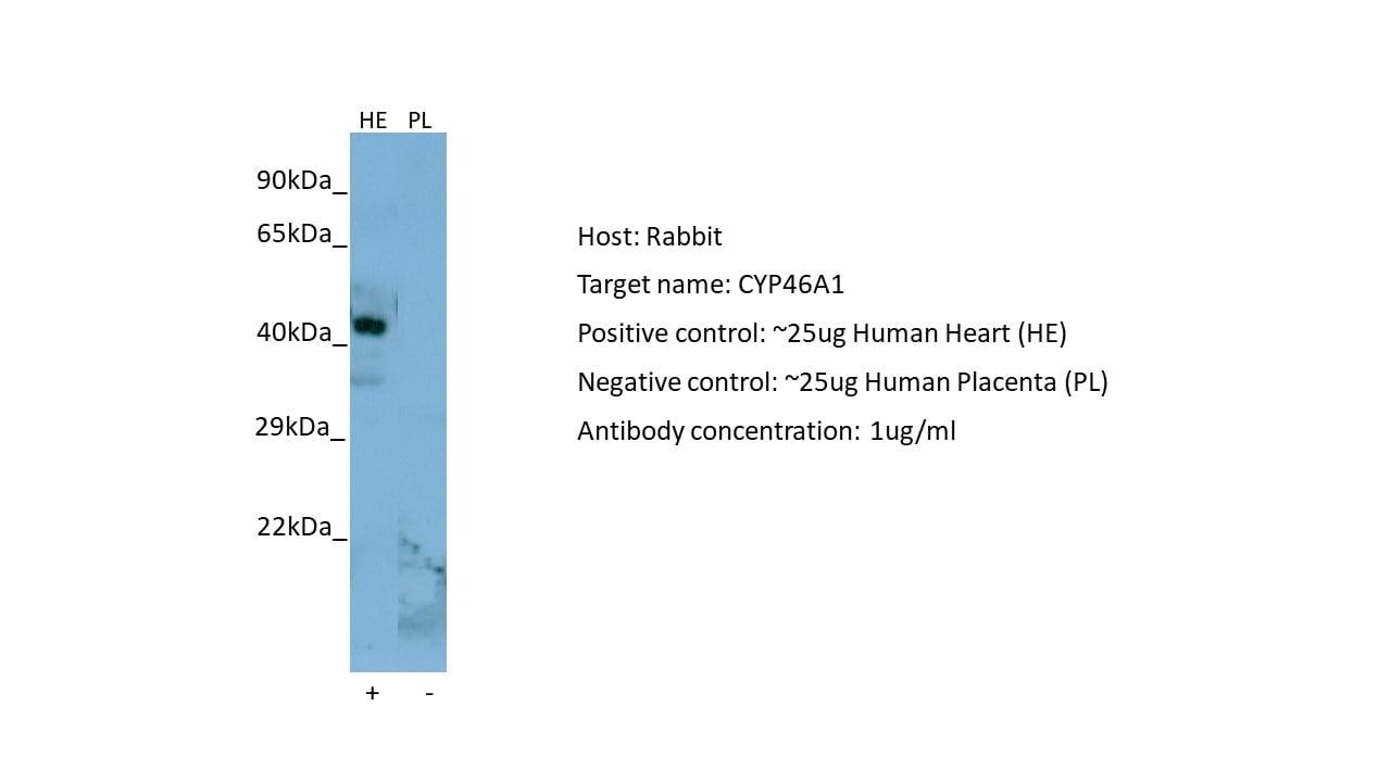 Western blot - Anti-CYP46A1 antibody (ab82814)