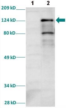Western blot - Anti-HIF-1-alpha antibody (ab82832)
