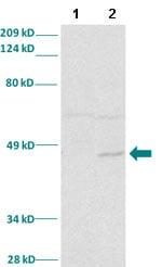 Western blot - Anti-SNAIL antibody (ab82846)