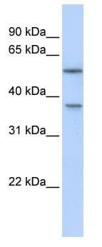 Western blot - Anti-RAB40B antibody (ab82896)