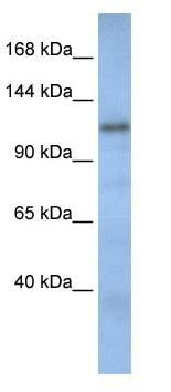 Western blot - Anti-TIP120B antibody (ab82914)
