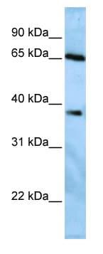 Western blot - Anti-USP3 antibody (ab82935)