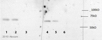 Western blot - Anti-IGF2BP1/IMP1 antibody (ab82968)