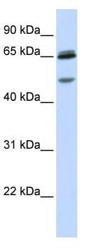 Western blot - Anti-GABA A Receptor gamma 2 antibody (ab82970)