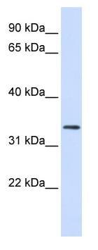 Western blot - Anti-FBXO25 antibody (ab82971)