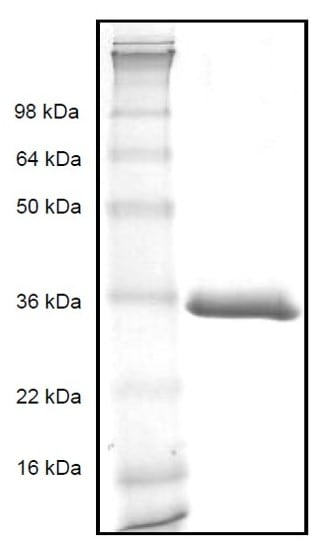 SDS-PAGE - Recombinant Human VCAM1 protein (ab82993)