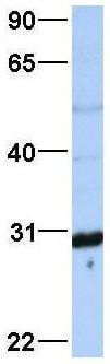 Western blot - Anti-MTX2 antibody (ab83015)