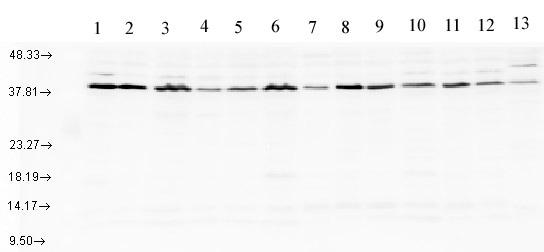 Western blot - Anti-AHA1 antibody (ab83036)