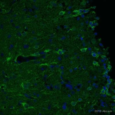 Immunohistochemistry (PFA perfusion fixed frozen sections) - Anti-NG2 antibody (ab83178)