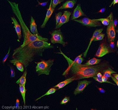 Immunocytochemistry/ Immunofluorescence - Anti-GABRR2 antibody (ab83223)