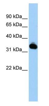 Western blot - Anti-Mutarotase antibody (ab83238)