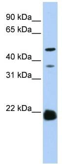 Western blot - Anti-ZDHHC14 antibody (ab83260)