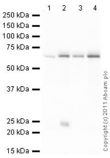 Western blot - Anti-SNRP70 antibody (ab83306)