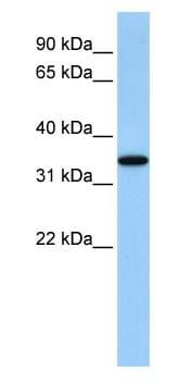 Western blot - Anti-ART4/DOK1 antibody (ab83342)