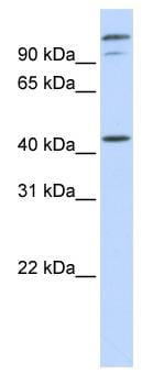 Western blot - Anti-AFG3L2 antibody (ab83418)