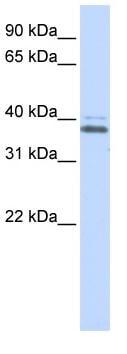 Western blot - Anti-ERGIC2 antibody (ab83419)