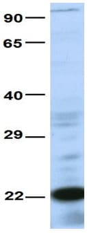 Western blot - Anti-CRIP2 antibody (ab83489)