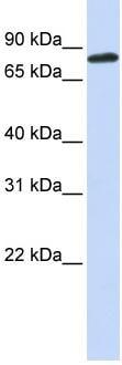 Western blot - Anti-Aconitase 2 antibody (ab83528)