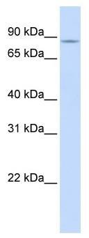 Western blot - Anti-SLC26A3 antibody (ab83545)