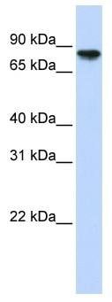 Western blot - Anti-Glycogen synthase 2 antibody (ab83550)