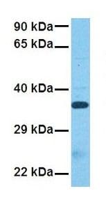 Western blot - Anti-VGLL3 antibody (ab83555)