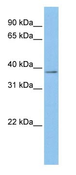 Western blot - Anti-Mesothelin antibody (ab83658)