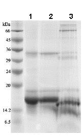 SDS-PAGE - Recombinant human IL-2 protein (ab83684)