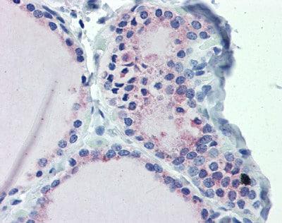 Immunohistochemistry (Formalin/PFA-fixed paraffin-embedded sections) - Anti-G protein alpha S antibody (ab83735)