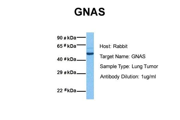 Western blot - Anti-GNAS antibody (ab83735)