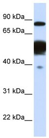 Western blot - Anti-Nexilin/F-actin-binding protein antibody (ab83746)