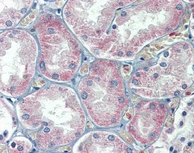 Immunohistochemistry (Formalin/PFA-fixed paraffin-embedded sections) - Anti-FATP2 antibody (ab83763)