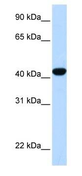 Western blot - Anti-Fumarylacetoacetate hydrolase / FAA antibody (ab83770)