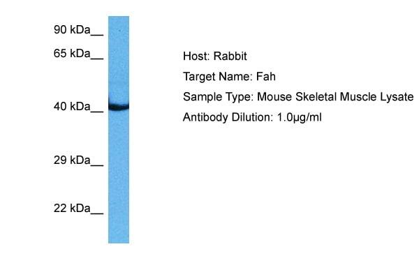 Western blot - Anti-Fumarylacetoacetate hydrolase/FAA antibody (ab83770)