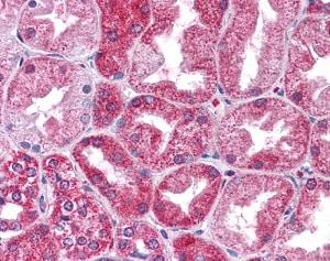 Immunohistochemistry (Formalin/PFA-fixed paraffin-embedded sections) - Anti-STAT3 antibody (ab83805)
