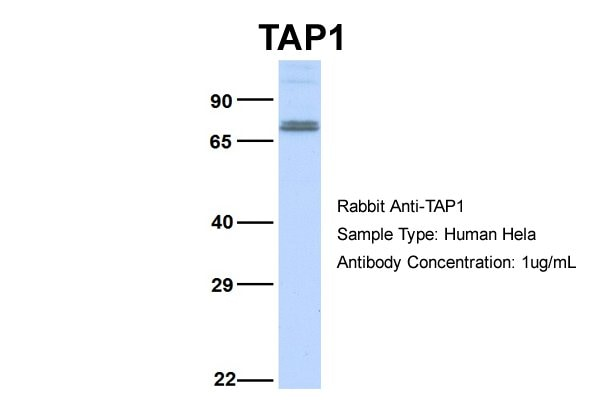 Western blot - Anti-TAP1 antibody (ab83817)