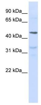 Western blot - Anti-IL28 Receptor alpha antibody (ab83865)