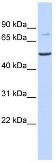 Western blot - Anti-BAAT antibody (ab83882)