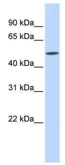 Western blot - Anti-IFIT2 antibody (ab83892)