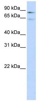 Western blot - Anti-Factor XIII antibody (ab83895)