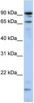 Western blot - Anti-MSL2L1 antibody (ab83911)
