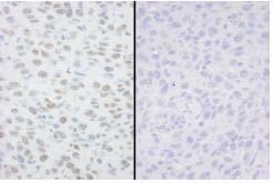 Immunohistochemistry (Formalin/PFA-fixed paraffin-embedded sections) - Anti-MCM2 (phospho S53) antibody (ab83969)